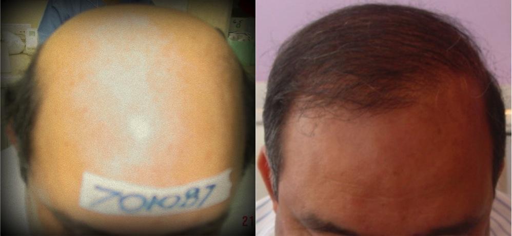 Maschere per capelli a bionde colorate